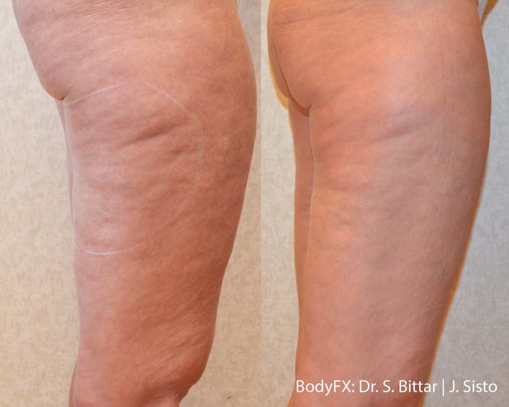 Woman 's BodyFX treatment removed her cellulite