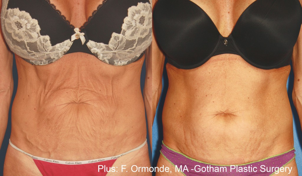 Woman's Forma Plus Skin Rejuvenation Before After images