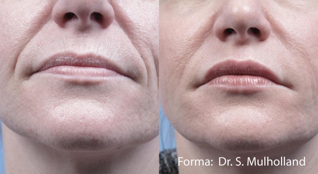 Forma Face Skin Rejuvenation Before After College Station TX