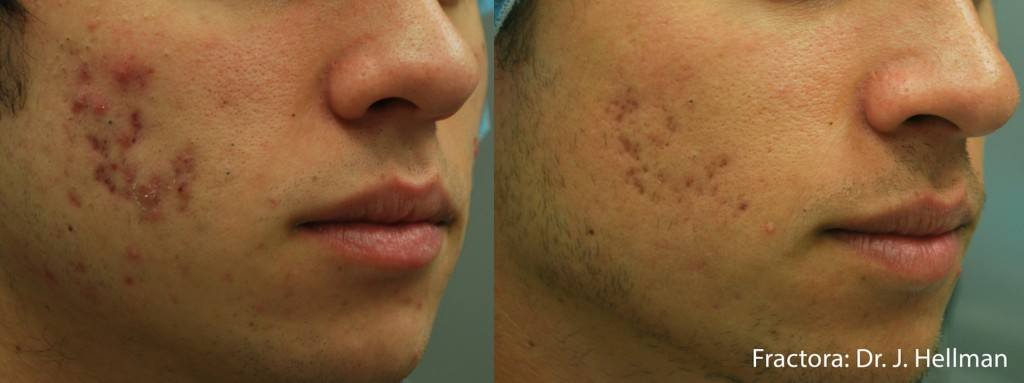 Fractora Acne Before After College Station TX