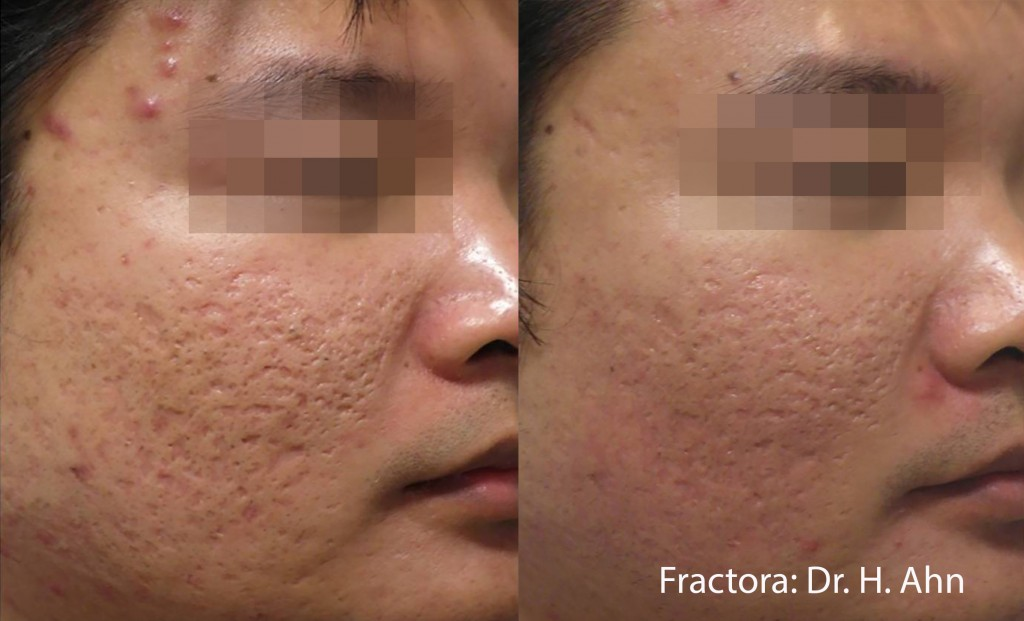 Man with decreased acne scarring after Fractora