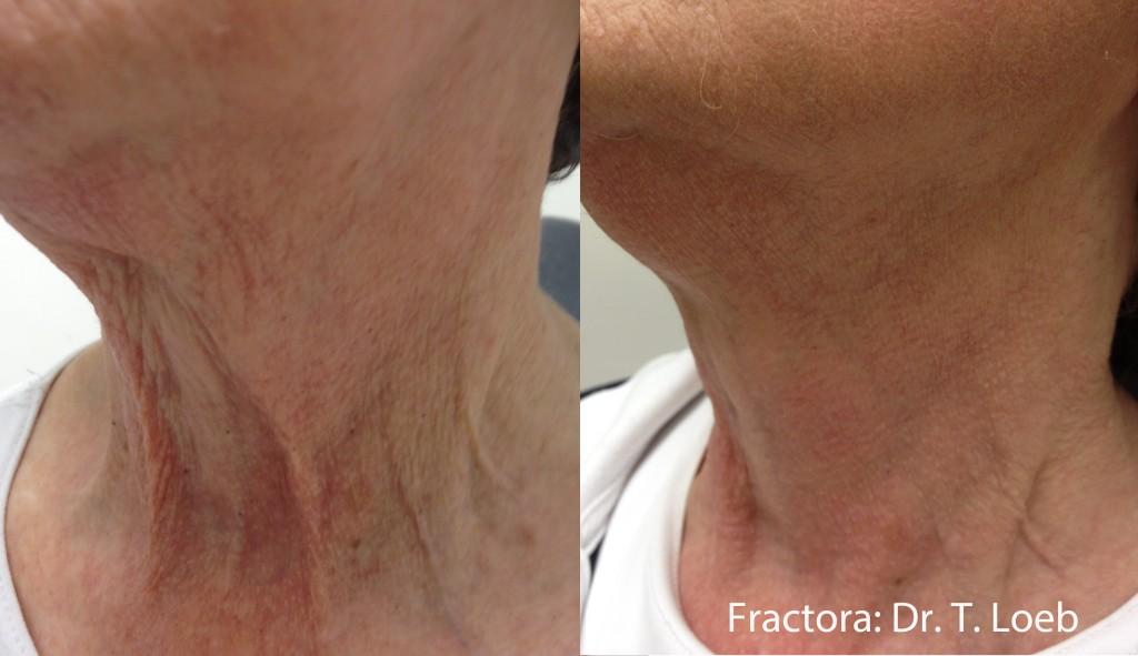 Fractora Neck Skin Tightening Before After College Station TX