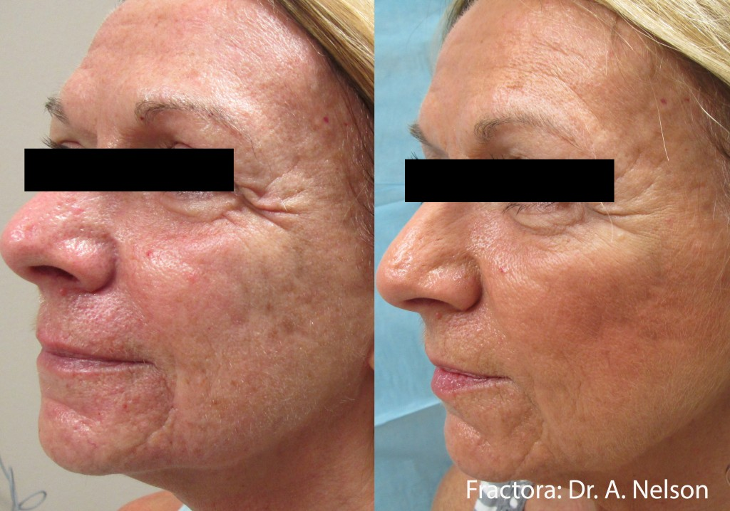 Fractora Skin Rejuvenation Before After