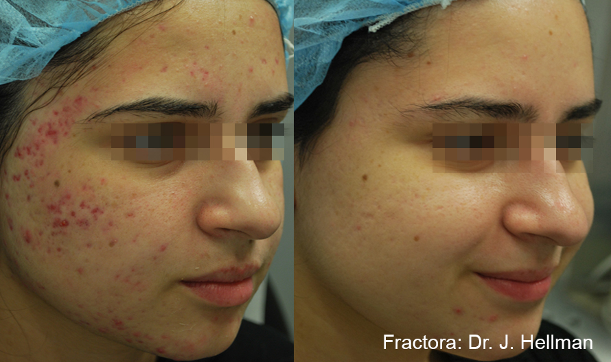Woman with decreased acne scarring after Fractora
