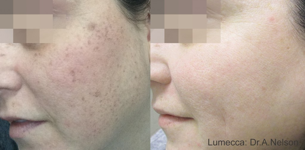 Woman with clear complexion after Lumecca