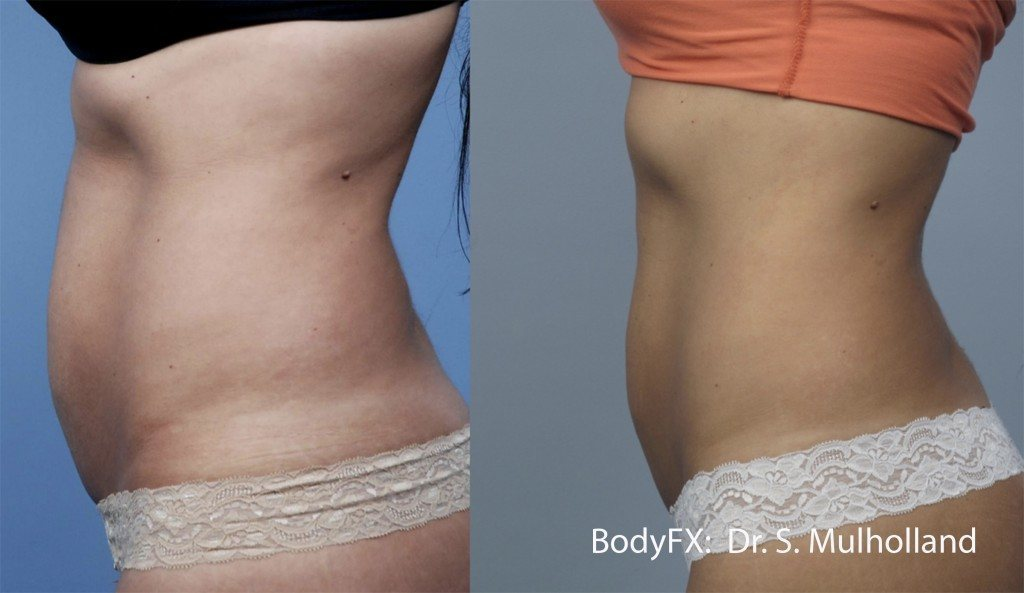 Woman's BodyFX treatment gave her a flat belly