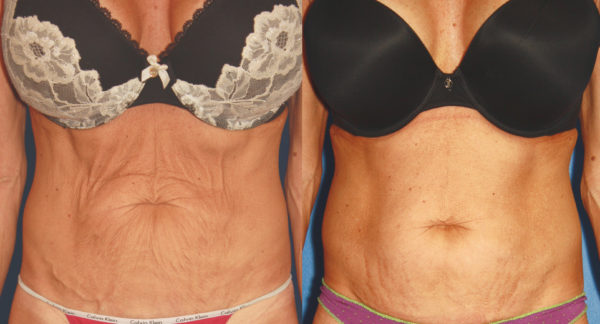Before and After image of woman's tight abdominal skin