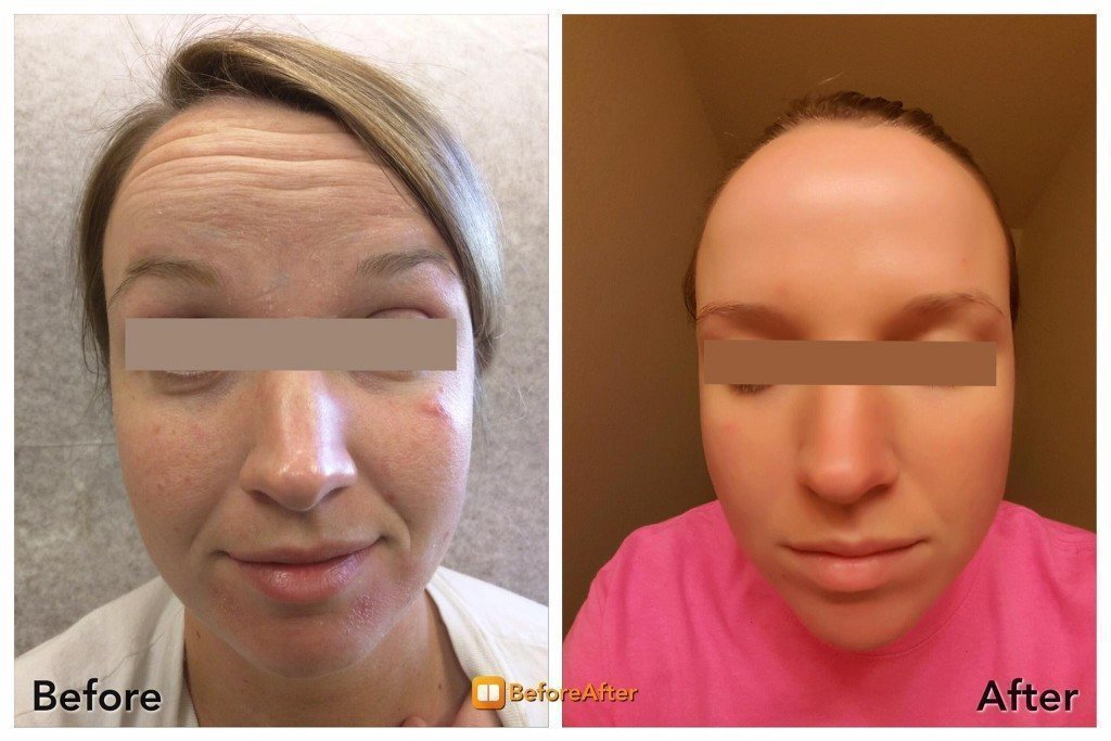 Woman with clear complexion after PRP treatment