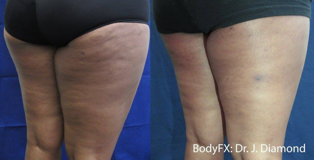 Woman with cellulite free legs after BodyFX