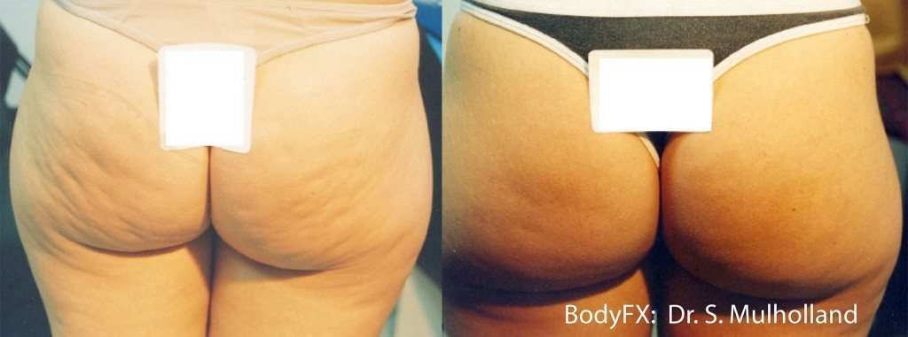 Woman with cellulite free buttocks after BodyFX