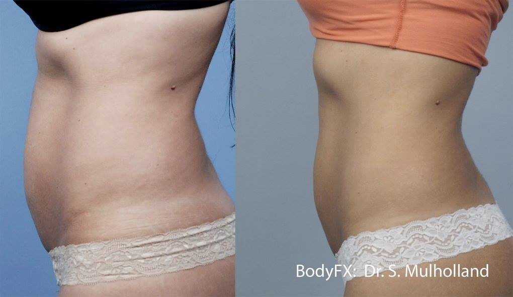 Woman with flat belly after BodyFX