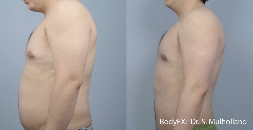 Man with flat belly after BodyFX
