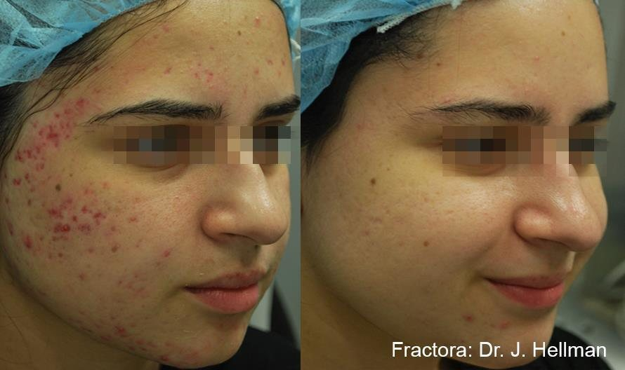 Before and After image of woman who had acne scars