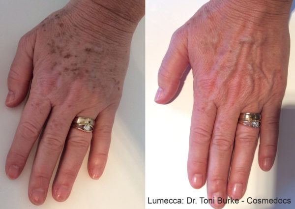 Beautiful hands after PRP Regenerative Hand Therapy