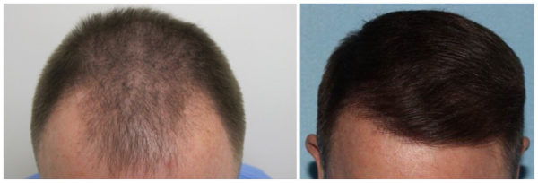 Man with full head of hair after SmartGraft™