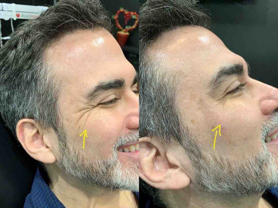 Man smoothing crow's feet with Botox